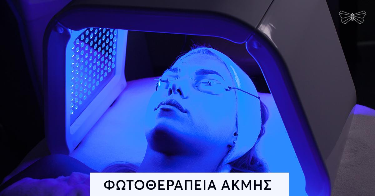 Φωτοθεραπεία κατά τη Ακμής